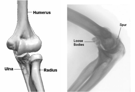Removal of Loose Bodies or Spurs   Orthopaedic - Simon Boyle